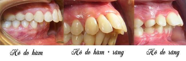 chỉnh hô hàm