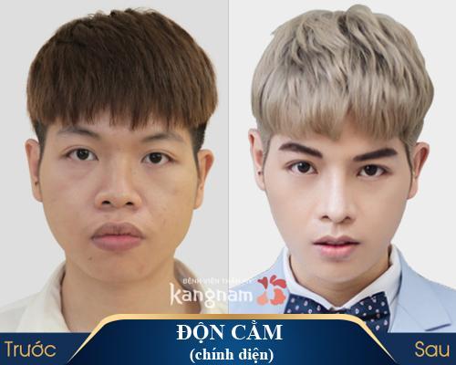 don cam an toan