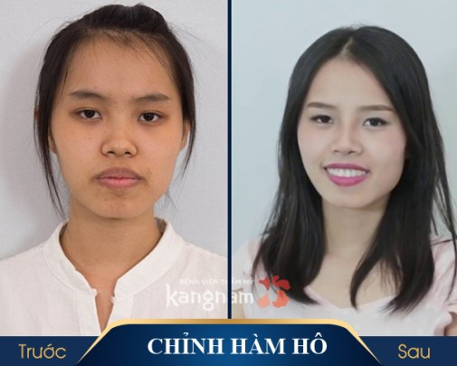 Hình ảnh trước và sau khi thẩm mỹ khuôn mặt
