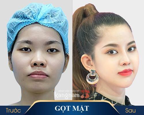 hình ảnh trươc và sau khi thẩm mỹ khuôn mặt