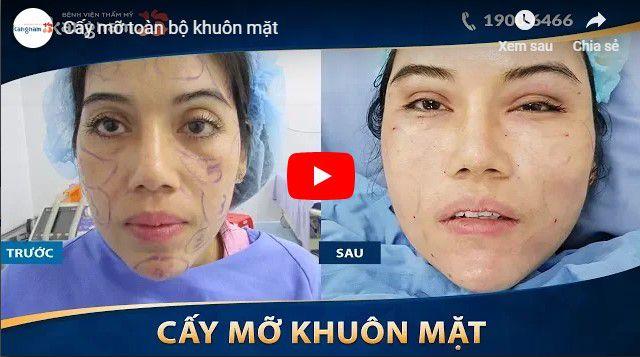 Video chi phí cấy mỡ mặt tại Kangnam