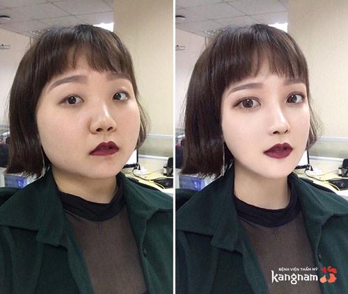 cách làm thon gọn khuôn mặt bằng photoshop