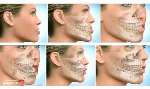 phẫu thuật mặt lưỡi cày