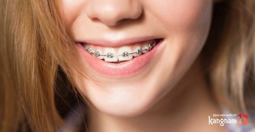 phương pháp chữa cười hở lợi tại nhà