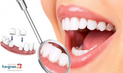 giải pháp chữa cười hở lợi không phẫu thuật