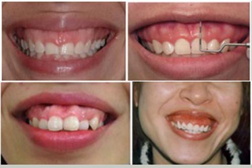 phẫu thuật cười hở lợi bao nhiêu tiền