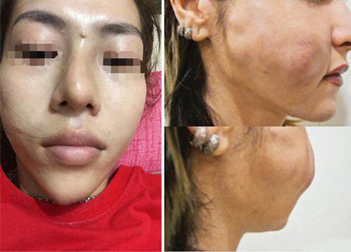phẫu thuật gọt mặt có nguy hiểm không
