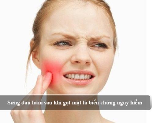 Phẫu thuật gọt hàm có nguy hiểm không 2