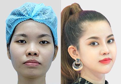 Phẫu thuật gọt mặt V line 3d tại Kangnam