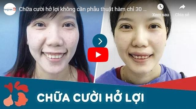 Video chữa cười hở lợi không phẫu thuật tại Kangnam