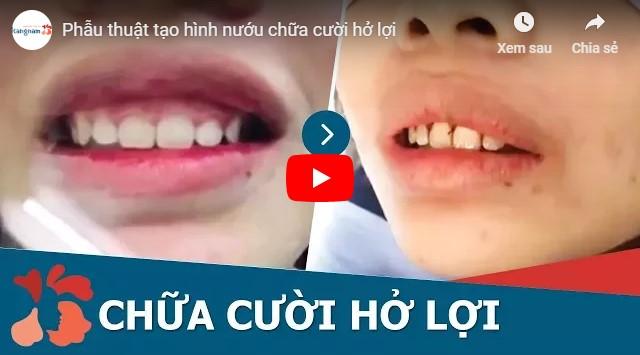 Video chữa cười hở lợi tại Kangnam