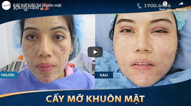 Video khắc phục khuôn mặt gầy hốc hác bằng cấy mỡ khuôn mặt