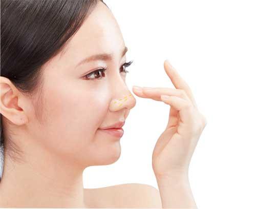 Phẫu thuật thu gọn cánh mũi có đau không? Chuyên gia giải đáp