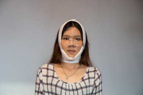 nguyễn hoàng oanh lột xác phẫu thuật thẩm mỹ