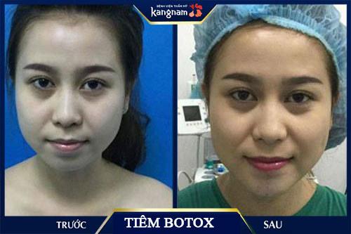tiêm botox gọn hàm vĩnh viễn