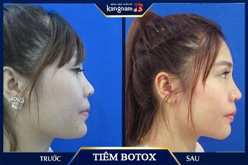 tiêm botox thon gọn hàm