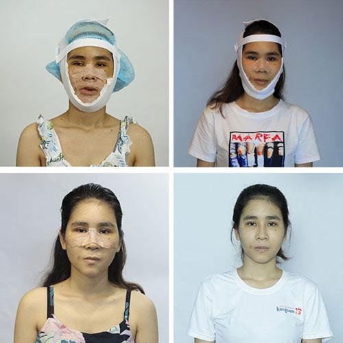 cao thị lan phẫu thuật hàm hô miễn phí