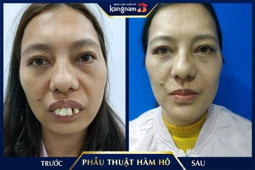 khách hàng phẫu thuật hàm hô miễn phí tại kangnam