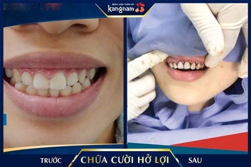 phẫu thuật cười hở lợi webtretho