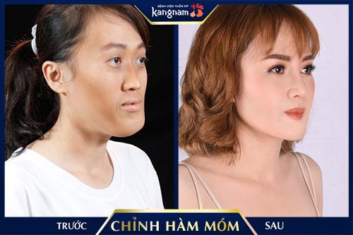 Huỳnh Thị Mỹ Duyên
