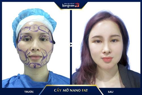 cấy mỡ mặt có an toàn không
